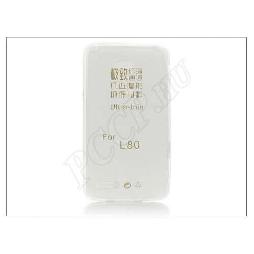 LG L80 Dual átlátszó szilikon hátlap