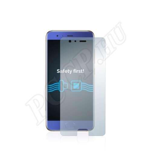 Xiaomi Mi 6 kijelzővédő fólia